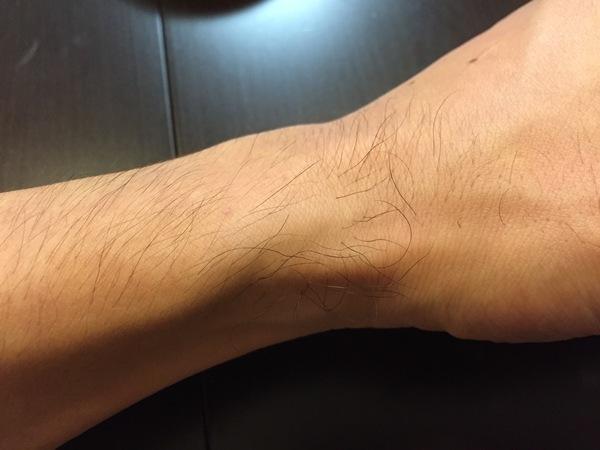 NULLブラジリアンワックスで手首の毛を脱毛してみた